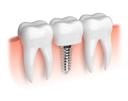 dental implant in Richmond